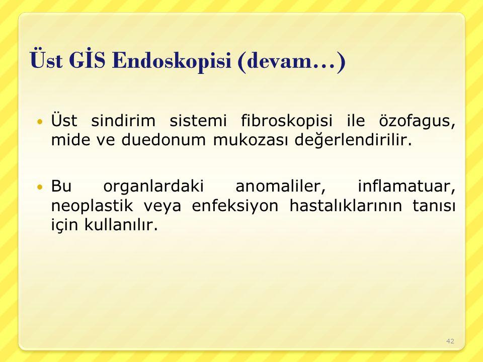 Üst G İ S Endoskopisi (devam…) Üst sindirim sistemi fibroskopisi ile özofagus, mide ve duedonum mukozası değerlendirilir. Bu organlardaki anomaliler,