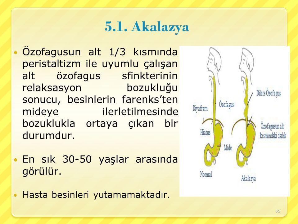 5.1. Akalazya Özofagusun alt 1/3 kısmında peristaltizm ile uyumlu çalışan alt özofagus sfinkterinin relaksasyon bozukluğu sonucu, besinlerin farenks't