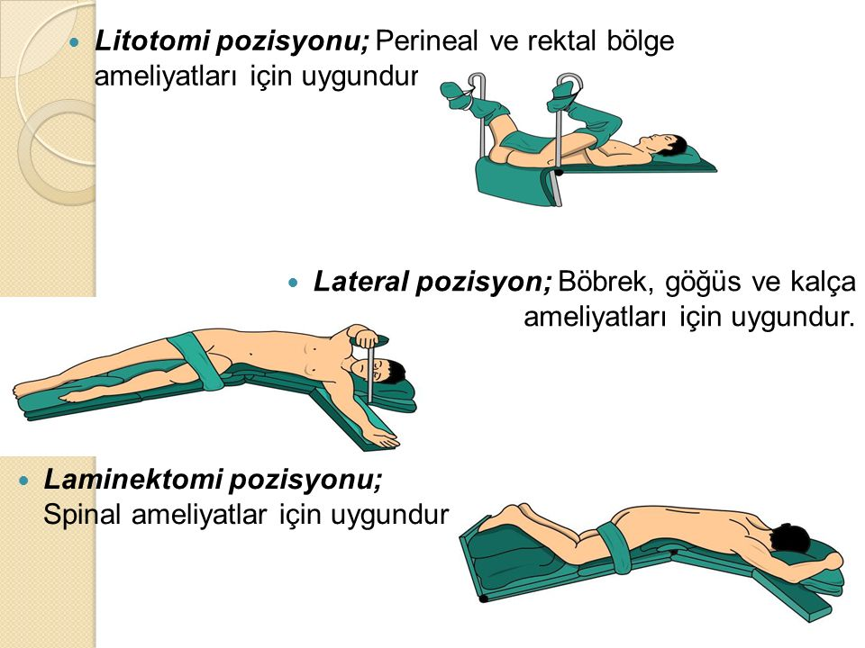 Litotomi pozisyonu; Perineal ve rektal bölge ameliyatları için uygundur. Lateral pozisyon; Böbrek, göğüs ve kalça ameliyatları için uygundur. Laminekt