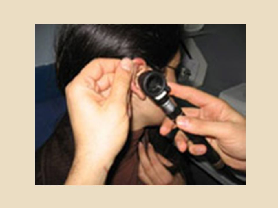  Tek kulakta SNİK varsa, kemik yolu ile olan iletim kısalacağı için, hasta diapozon titreşimini sağlam kulağı ile duyar.