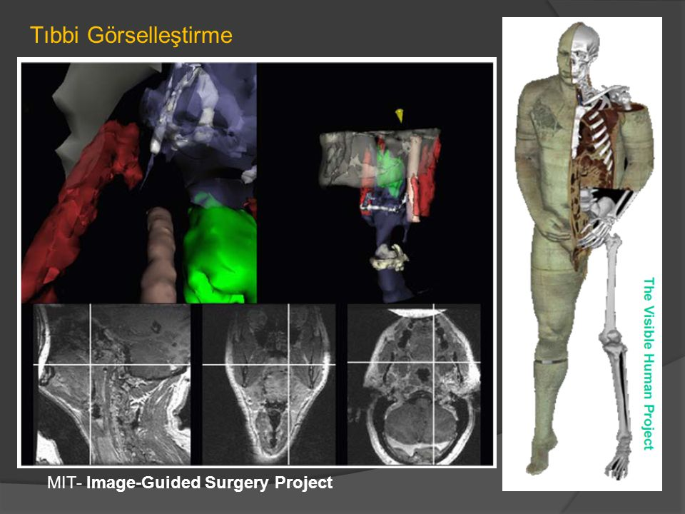 MIT- Image-Guided Surgery Project Tıbbi Görselleştirme