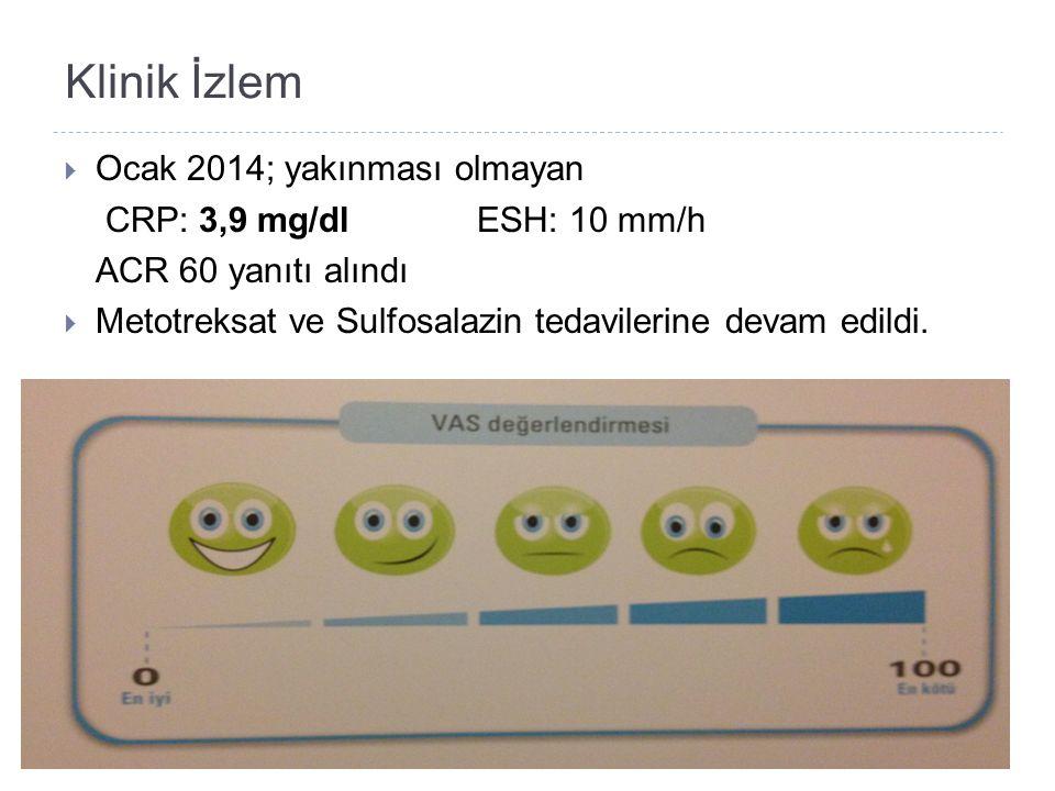 Klinik İzlem  Ocak 2014; yakınması olmayan CRP: 3,9 mg/dl ESH: 10 mm/h ACR 60 yanıtı alındı  Metotreksat ve Sulfosalazin tedavilerine devam edildi.