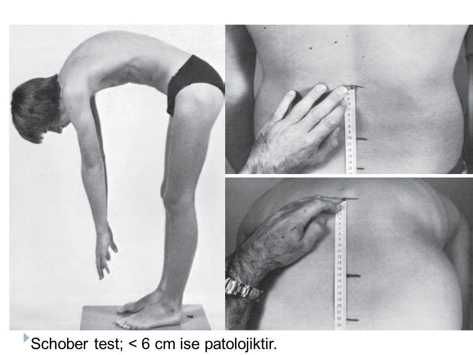 Schober test; < 6 cm ise patolojiktir.