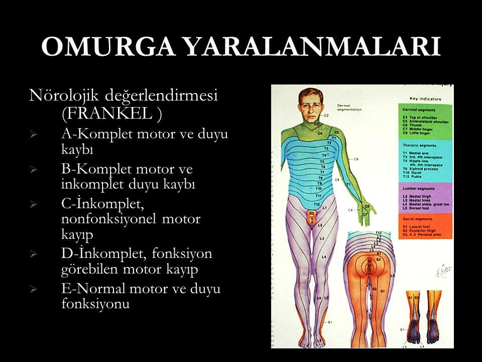 OMURGA YARALANMALARI Nörolojik değerlendirmesi (FRANKEL )  A-Komplet motor ve duyu kaybı  B-Komplet motor ve inkomplet duyu kaybı  C-İnkomplet, non