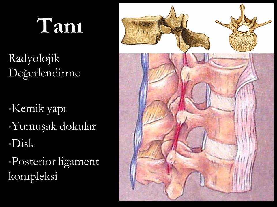 Tanı Radyolojik Değerlendirme Kemik yapı Kemik yapı Yumuşak dokular Yumuşak dokular Disk Disk Posterior ligament kompleksi Posterior ligament kompleks