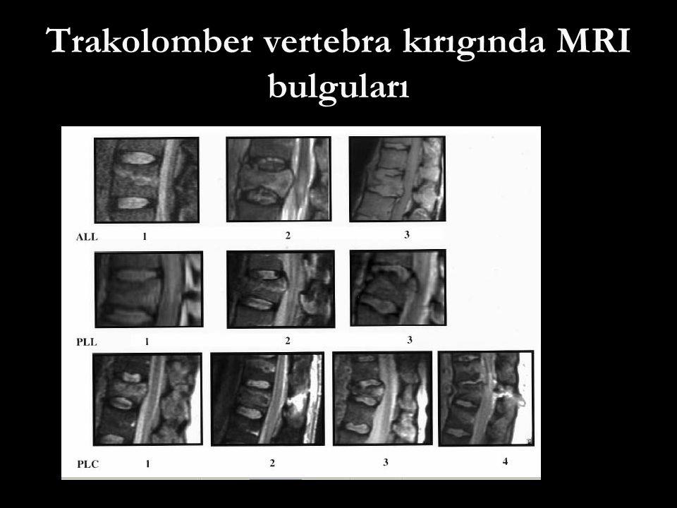 Trakolomber vertebra kırıgında MRI bulguları