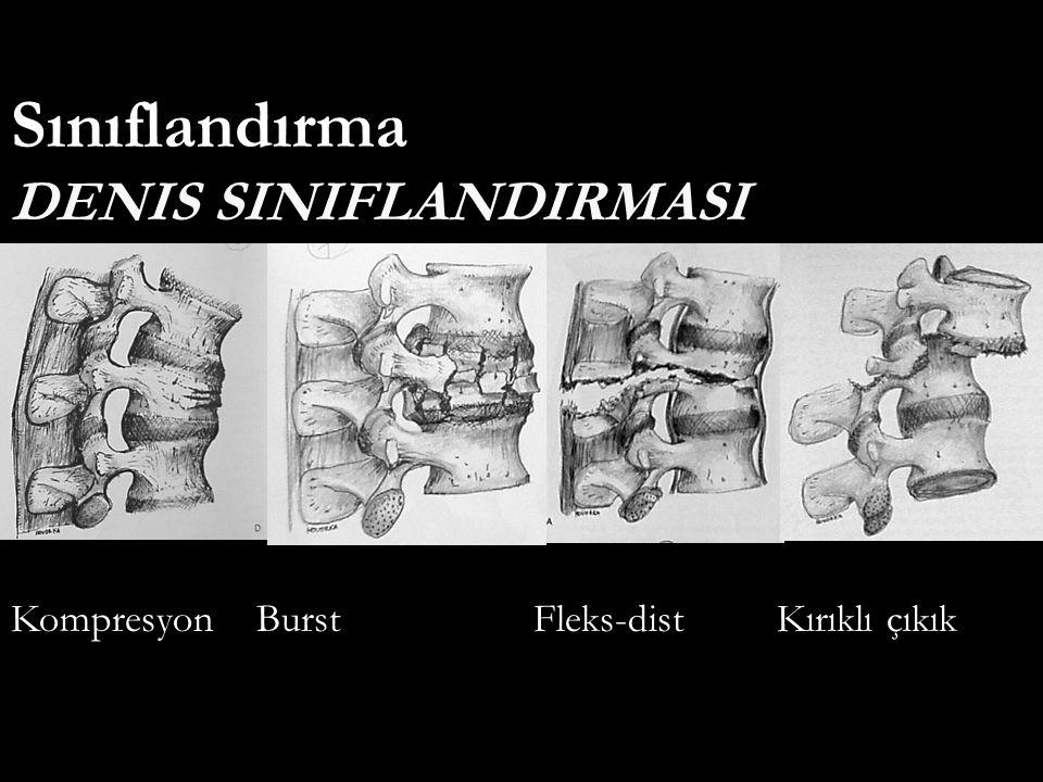 DENIS SINIFLANDIRMASI Sınıflandırma Kompresyon Burst Fleks-dist Kırıklı çıkık
