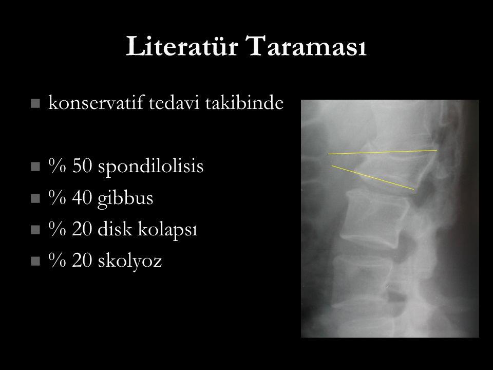 Literatür Taraması konservatif tedavi takibinde konservatif tedavi takibinde % 50 spondilolisis % 50 spondilolisis % 40 gibbus % 40 gibbus % 20 disk k
