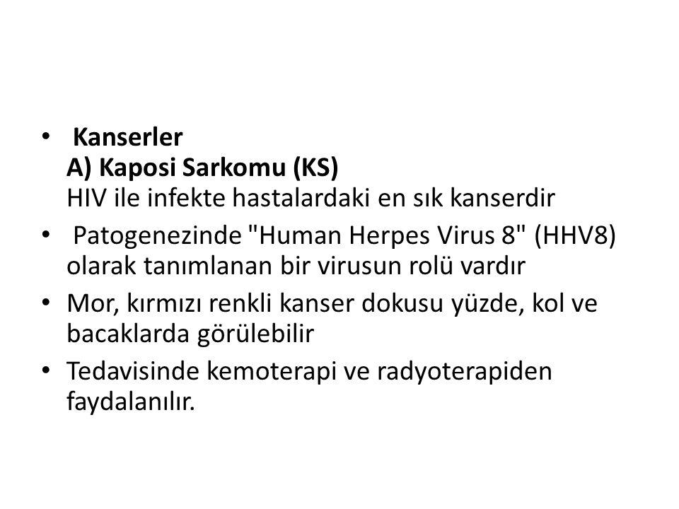Kanserler A) Kaposi Sarkomu (KS) HIV ile infekte hastalardaki en sık kanserdir Patogenezinde Human Herpes Virus 8 (HHV8) olarak tanımlanan bir virusun rolü vardır Mor, kırmızı renkli kanser dokusu yüzde, kol ve bacaklarda görülebilir Tedavisinde kemoterapi ve radyoterapiden faydalanılır.