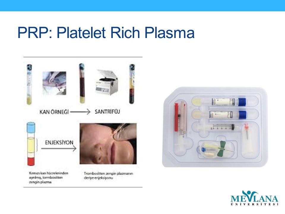 PRP: Platelet Rich Plasma