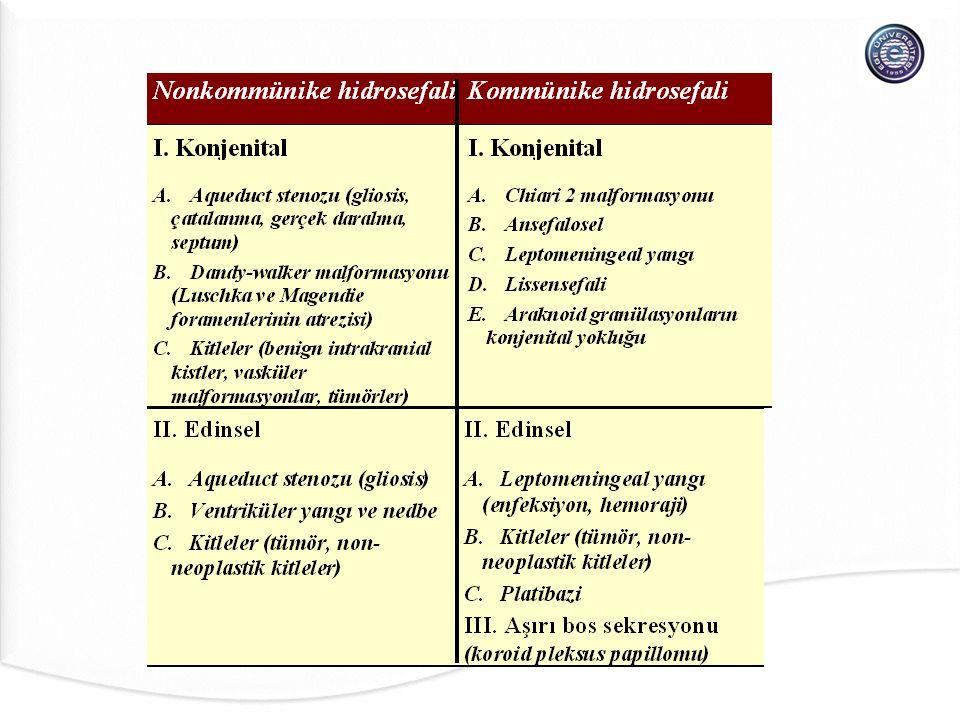 RAIMONDI Birleşik Sınıflandırması 1994 (Sıvının toplandığı yere göre) I.