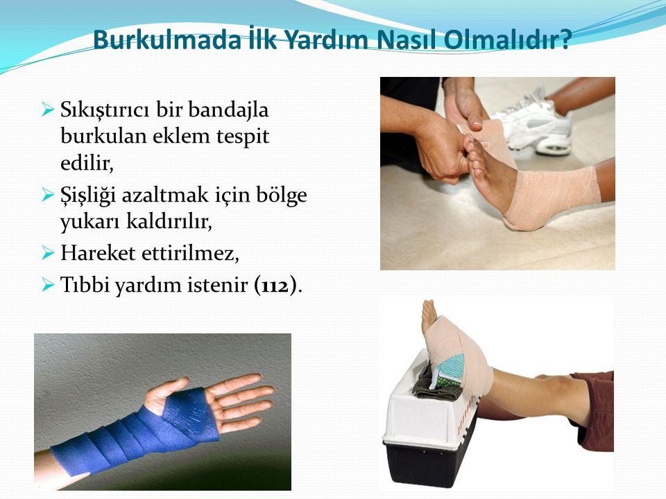 Burkulmada İlk Yardım Nasıl Olmalıdır?  Sıkıştırıcı bir bandajla burkulan eklem tespit edilir,  Şişliği azaltmak için bölge yukarı kaldırılır,  Har