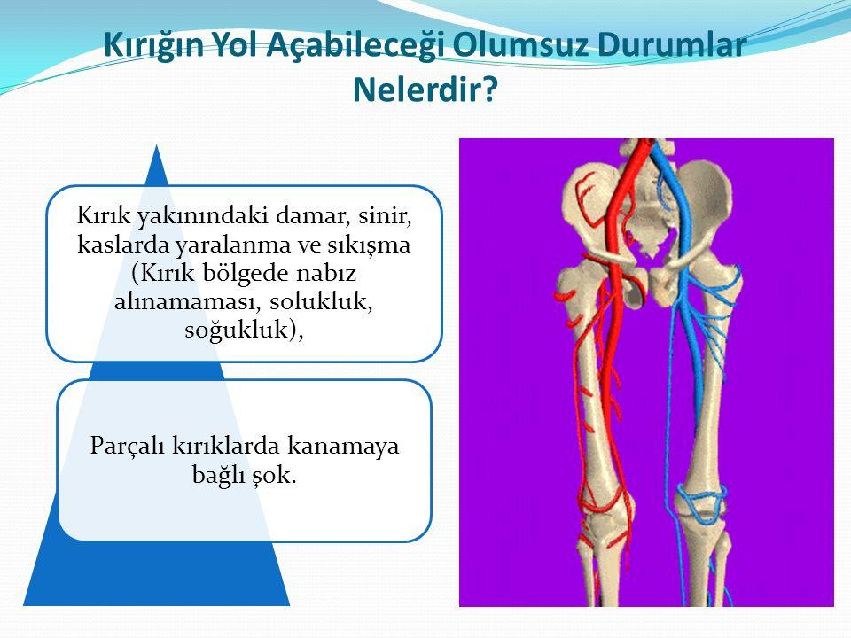 Kırığın Yol Açabileceği Olumsuz Durumlar Nelerdir? Kırık yakınındaki damar, sinir, kaslarda yaralanma ve sıkışma (Kırık bölgede nabız alınamaması, sol