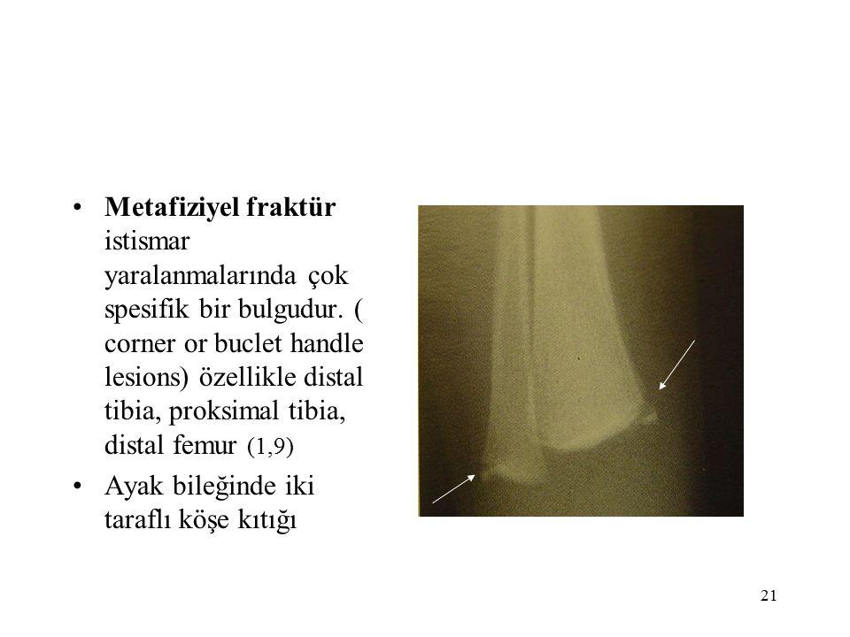 21 Metafiziyel fraktür istismar yaralanmalarında çok spesifik bir bulgudur.
