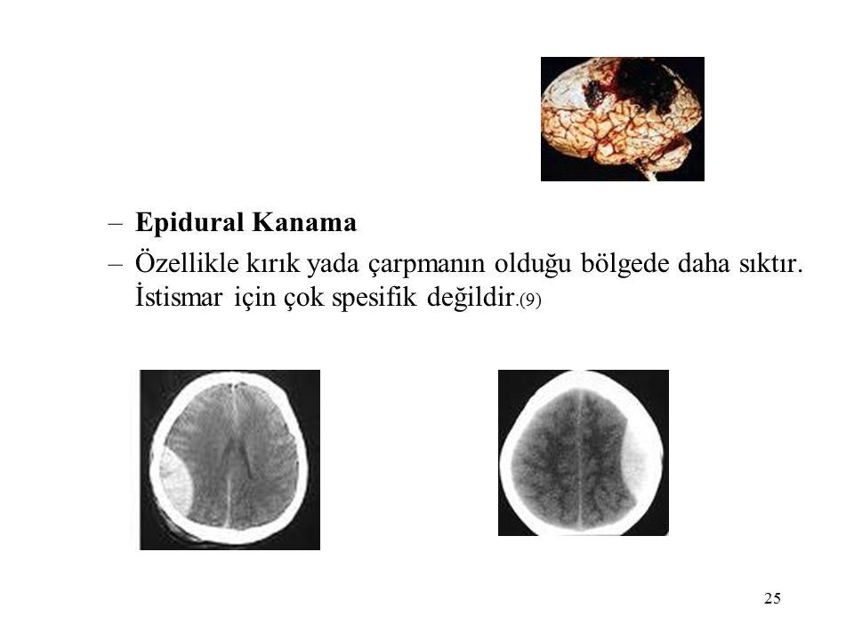 25 –Epidural Kanama –Özellikle kırık yada çarpmanın olduğu bölgede daha sıktır.