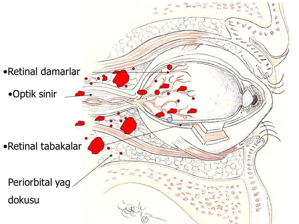 3 Optik sinir Retinal damarlar Retinal tabakalar Periorbital yag dokusu
