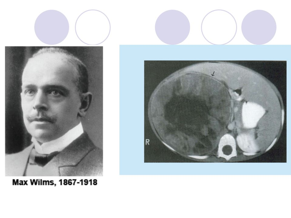 Klinik / Semptomlar Abdominal kitle  genellikle ilk bulgudur Hipertansiyon Hematüri