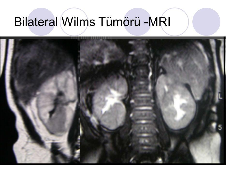 Bilateral Wilms Tümörü -MRI