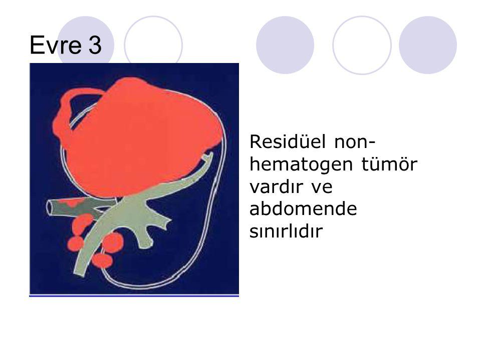Evre 3 Residüel non- hematogen tümör vardır ve abdomende sınırlıdır