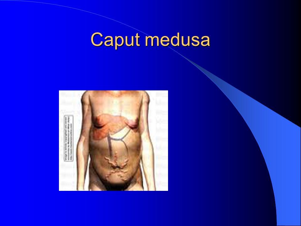 Kaput medusa Vena porta basıncının yüksek olduğunu gösterir.