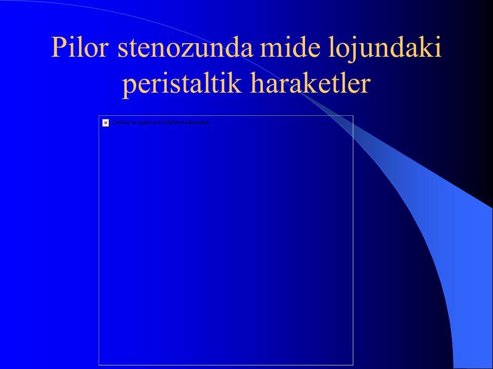 Karında görülen peristaltik dalgalar Mide-barsak sisteminde obstr ü ksiyon olduğunda g ö zlenir.