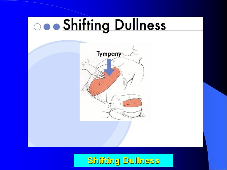 "Examination for Shifting Dullness Patient rolled slightly toward the examined side; movement of the dull point medially is described as ""shifting dull"