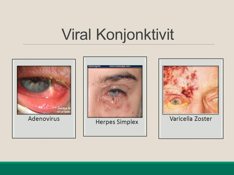 Viral Konjonktivit Adenovirus Herpes Simplex Varicella Zoster