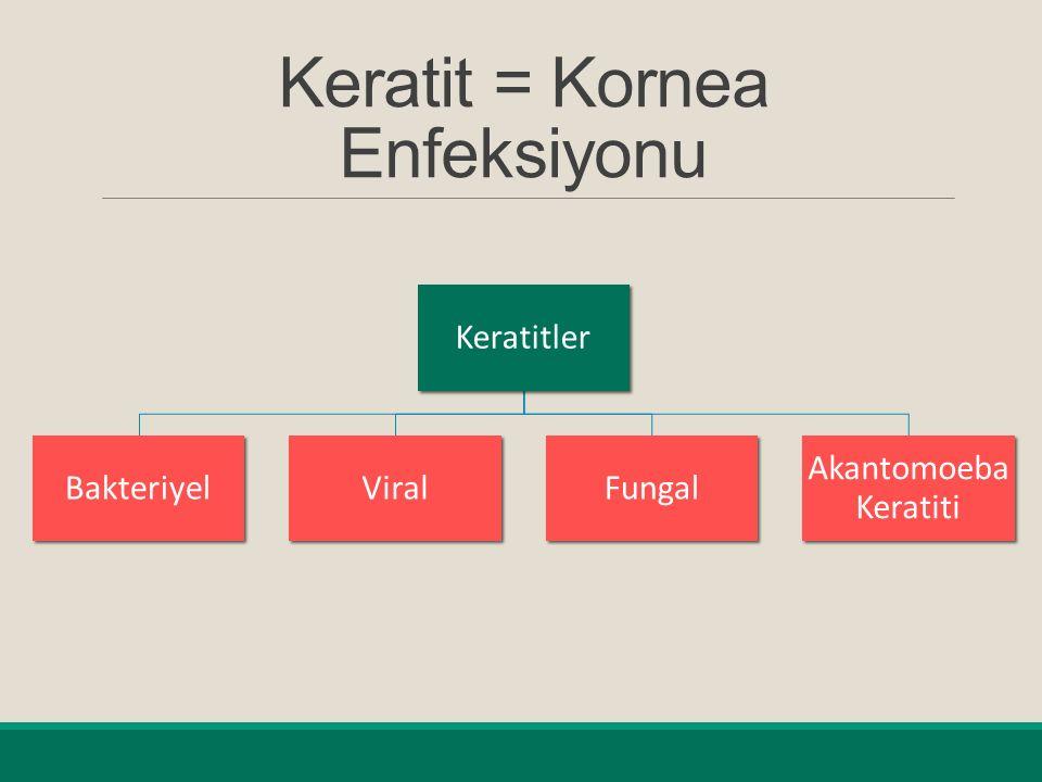 Keratit = Kornea Enfeksiyonu Keratitler BakteriyelViralFungal Akantomoeba Keratiti