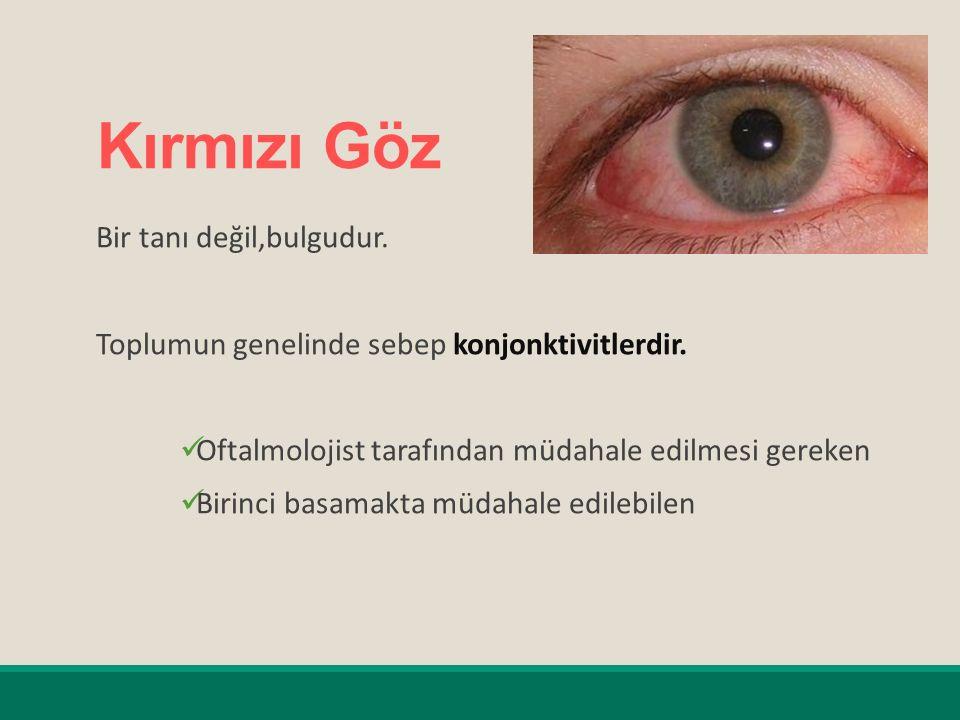Kırmızı Göz Bir tanı değil,bulgudur.Toplumun genelinde sebep konjonktivitlerdir.