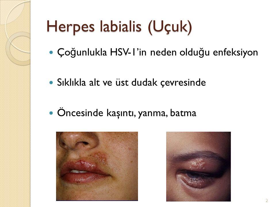 Herpes labialis (Uçuk) Ço ğ unlukla HSV-1'in neden oldu ğ u enfeksiyon Sıklıkla alt ve üst dudak çevresinde Öncesinde kaşıntı, yanma, batma 2