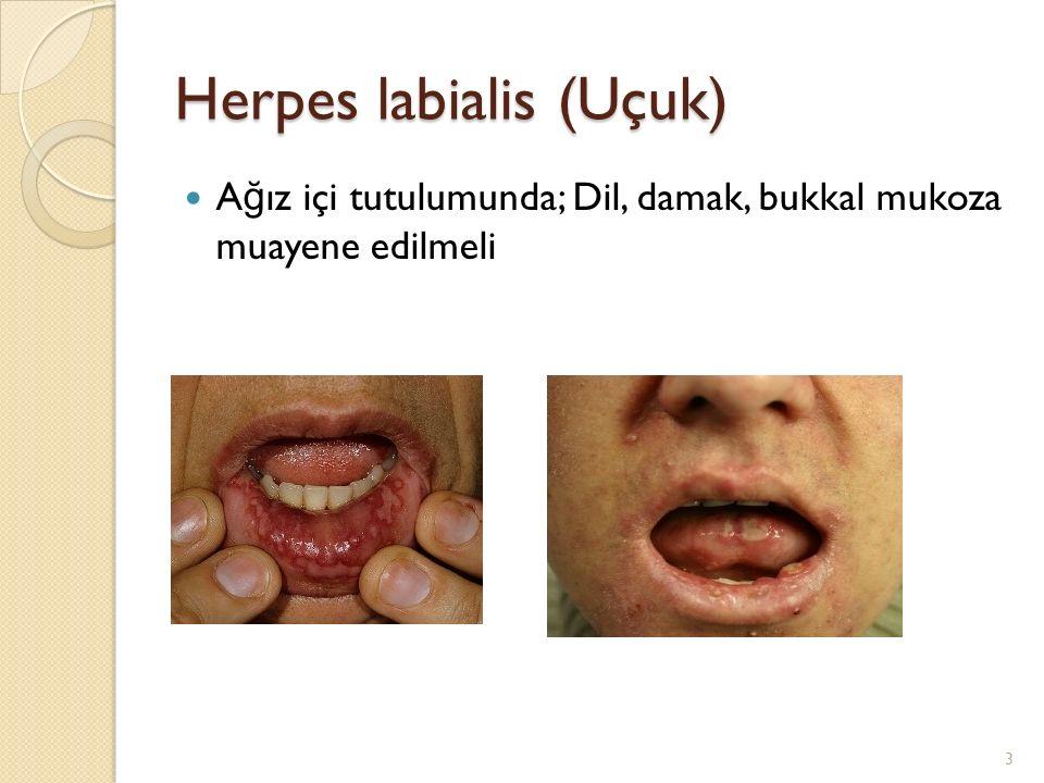 Herpes labialis (Uçuk) Eritemli zeminde grube veziküller Veziküllerin açılmasıyla erode alanlar Sarımtırak renkli krustalar 4