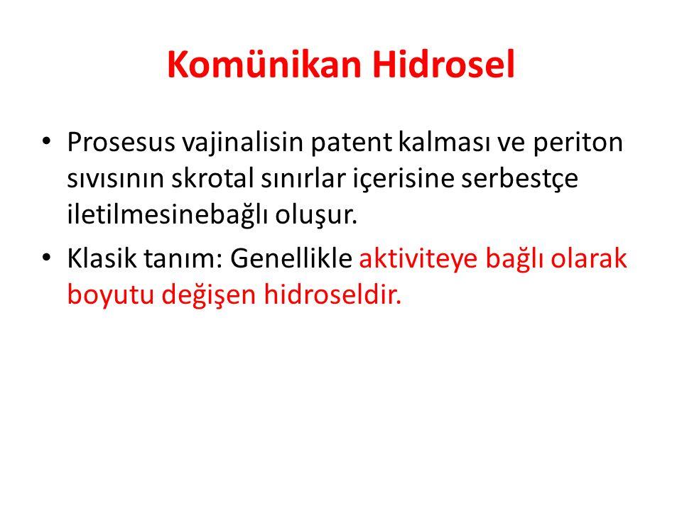 Komünikan Hidrosel Prosesus vajinalisin patent kalması ve periton sıvısının skrotal sınırlar içerisine serbestçe iletilmesinebağlı oluşur. Klasik tanı