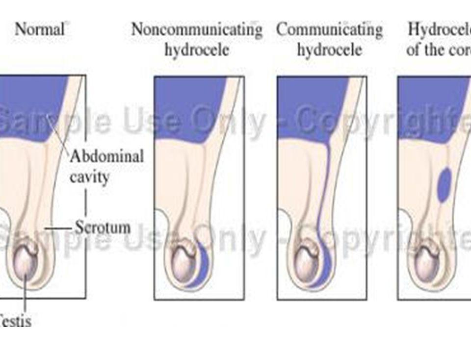 Abdominoskrotal Hidrosel Nadir bir durum olmakla beraber iki lobdan oluşan hidrosel inguinal halkadan geçer.
