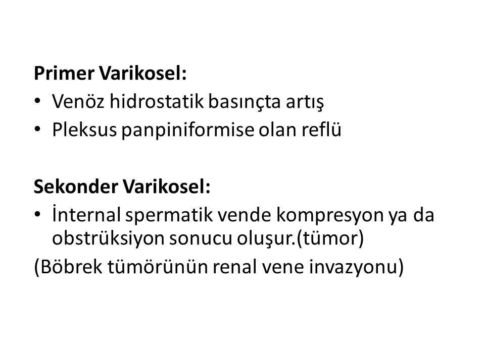 Primer Varikosel: Venöz hidrostatik basınçta artış Pleksus panpiniformise olan reflü Sekonder Varikosel: İnternal spermatik vende kompresyon ya da obs