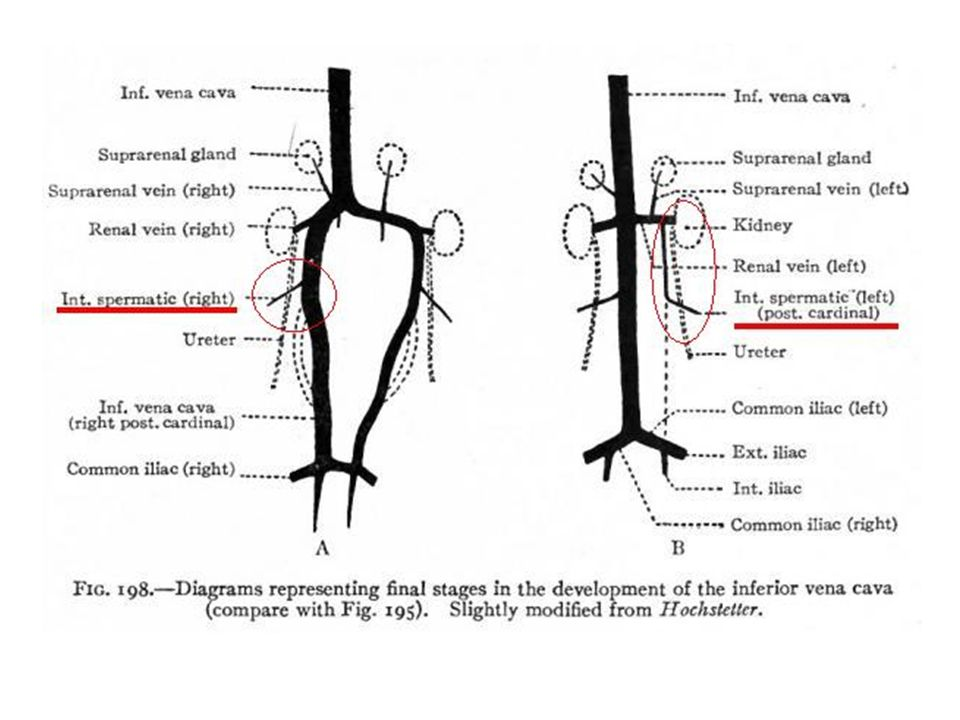 Etioloji Anatomik Nedenler: Sol V.spermatika interna sol renal vene dik açıyla drene olur.