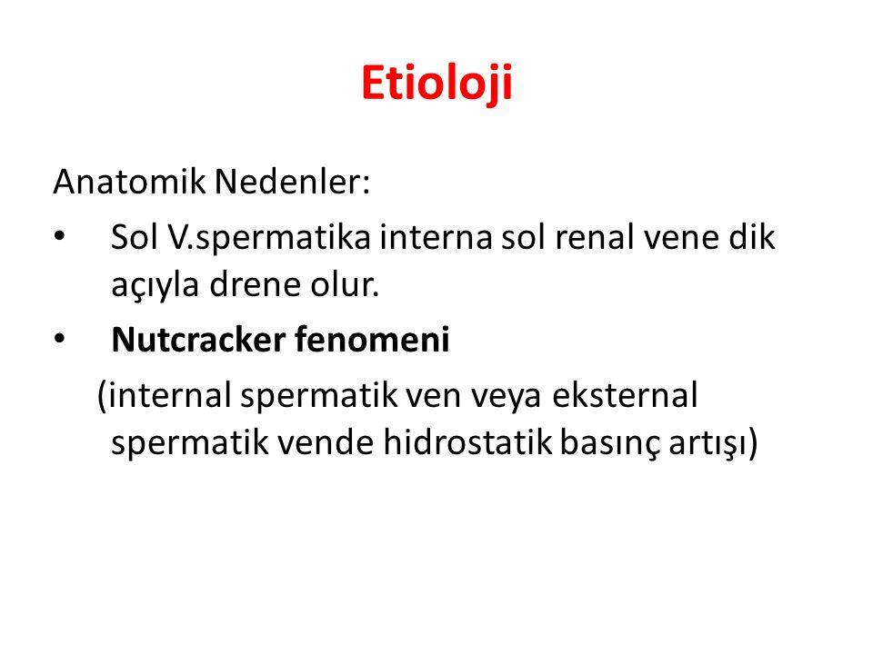 Etioloji Anatomik Nedenler: Sol V.spermatika interna sol renal vene dik açıyla drene olur. Nutcracker fenomeni (internal spermatik ven veya eksternal