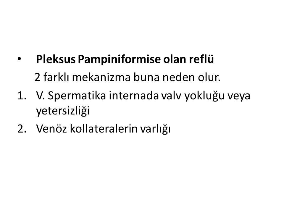 Pleksus Pampiniformise olan reflü 2 farklı mekanizma buna neden olur. 1.V. Spermatika internada valv yokluğu veya yetersizliği 2.Venöz kollateralerin