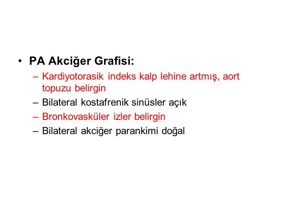 PA Akciğer Grafisi: –Kardiyotorasik indeks kalp lehine artmış, aort topuzu belirgin –Bilateral kostafrenik sinüsler açık –Bronkovasküler izler belirgin –Bilateral akciğer parankimi doğal