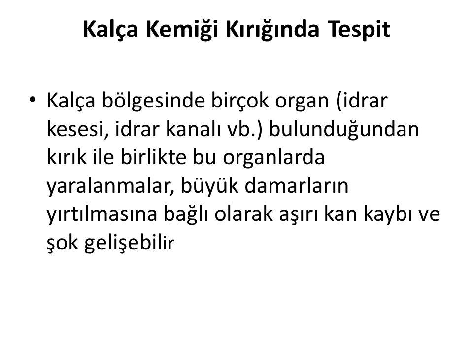 Kalça Kemiği Kırığında Tespit Kalça bölgesinde birçok organ (idrar kesesi, idrar kanalı vb.) bulunduğundan kırık ile birlikte bu organlarda yaralanmal