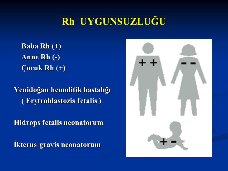 Baba Rh (+) Baba Rh (+) Anne Rh (-) Anne Rh (-) Çocuk Rh (+) Çocuk Rh (+) Yenidoğan hemolitik hastalığı ( Erytroblastozis fetalis ) ( Erytroblastozis