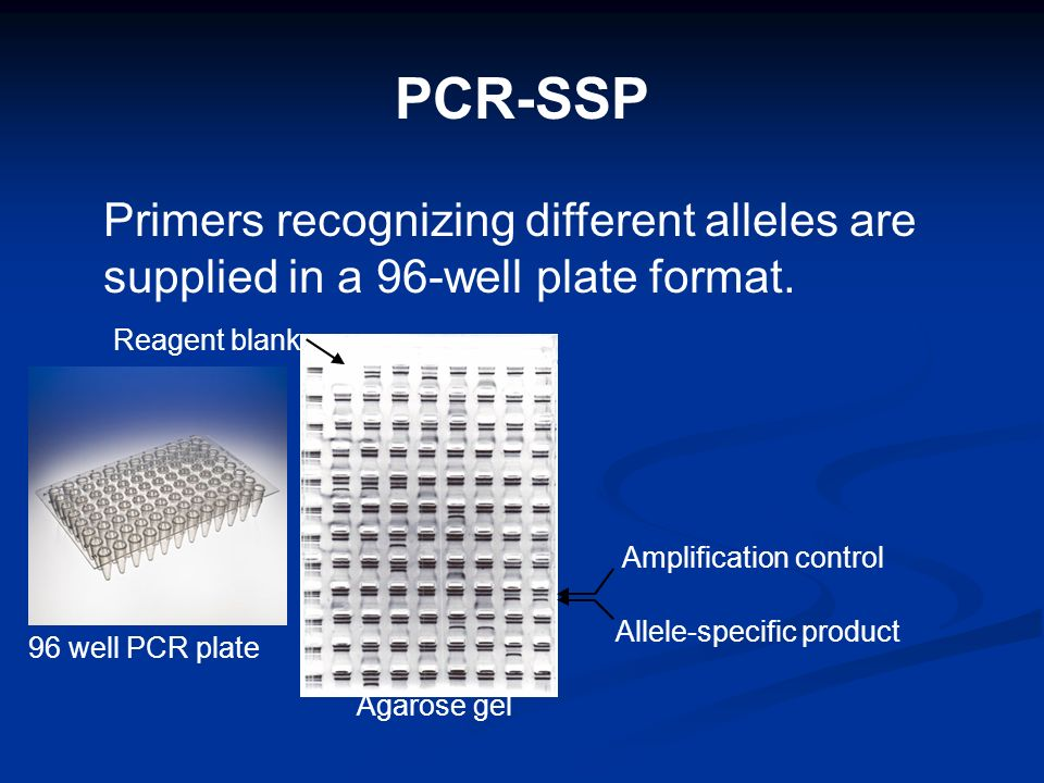PCR-SSP Primers recognizing different alleles are supplied in a 96-well plate format. Amplification control Allele-specific product Reagent blank Agar