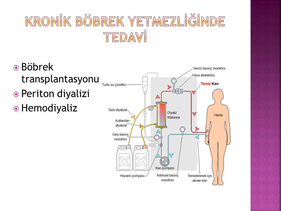  Böbrek transplantasyonu  Periton diyalizi  Hemodiyaliz
