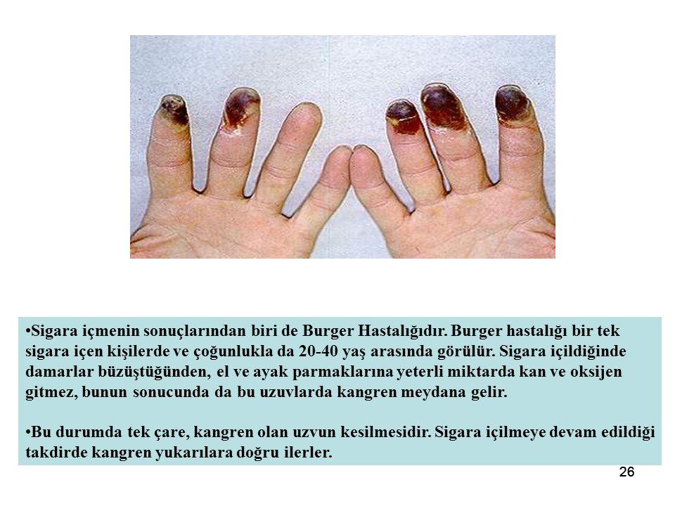 26 Sigara içmenin sonuçlarından biri de Burger Hastalığıdır.