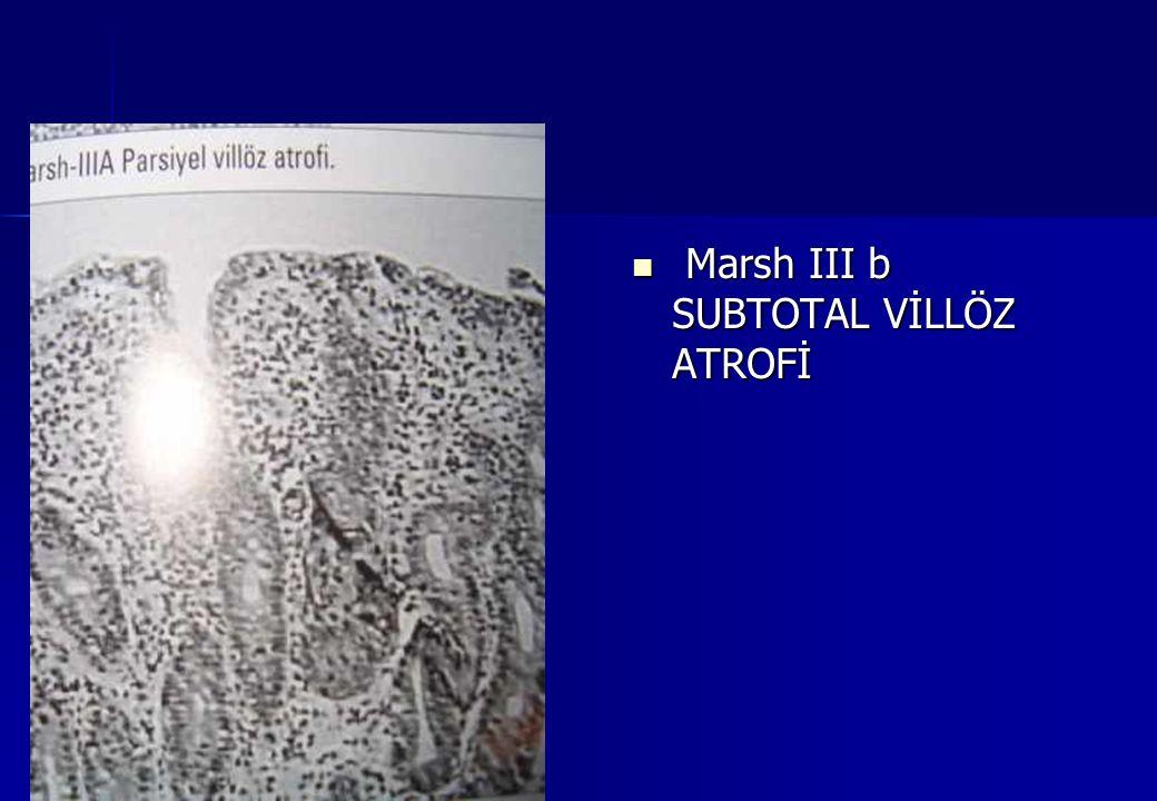 Marsh III b SUBTOTAL VİLLÖZ ATROFİ Marsh III b SUBTOTAL VİLLÖZ ATROFİ