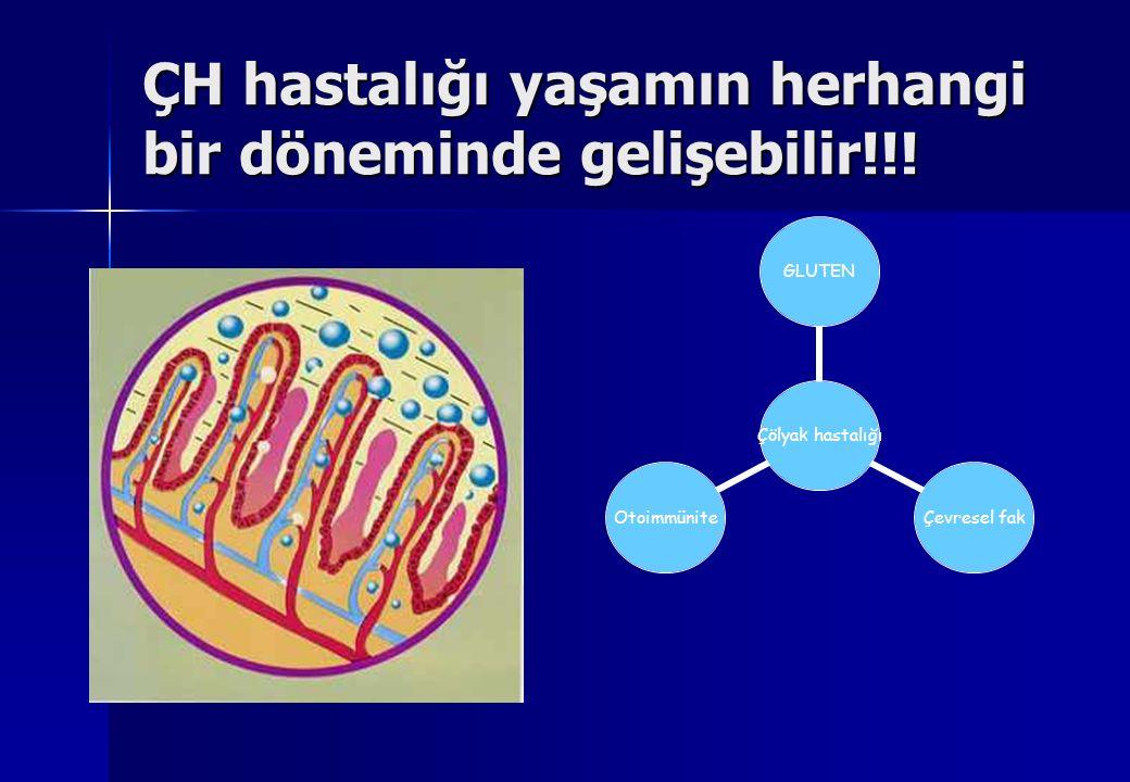 ÇH hastalığı yaşamın herhangi bir döneminde gelişebilir!!! Çölyak hastalığı GLUTENÇevresel fakOtoimmünite