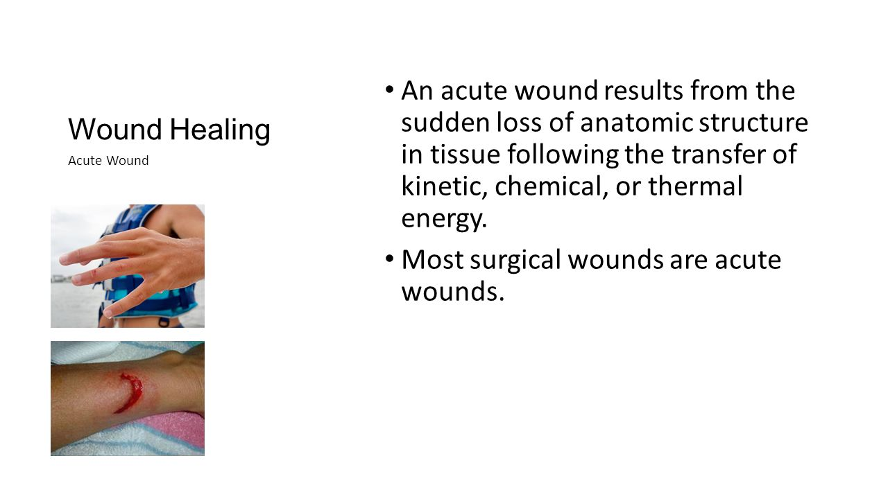 Wound Healing Wound healing fails in a chronic wound.