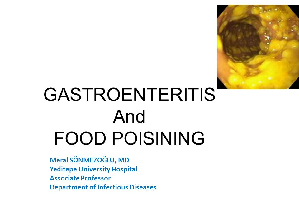 Learning Objectives – Describe and classify of gastroenteritis and food poisoning – Explain the epidemiology of gastroenteritis and possible etiologic agents in various clinical settings – Know the pathophysiology of gastroenteritis – Develop an information on diagnosis and management plan for gastroenteritis
