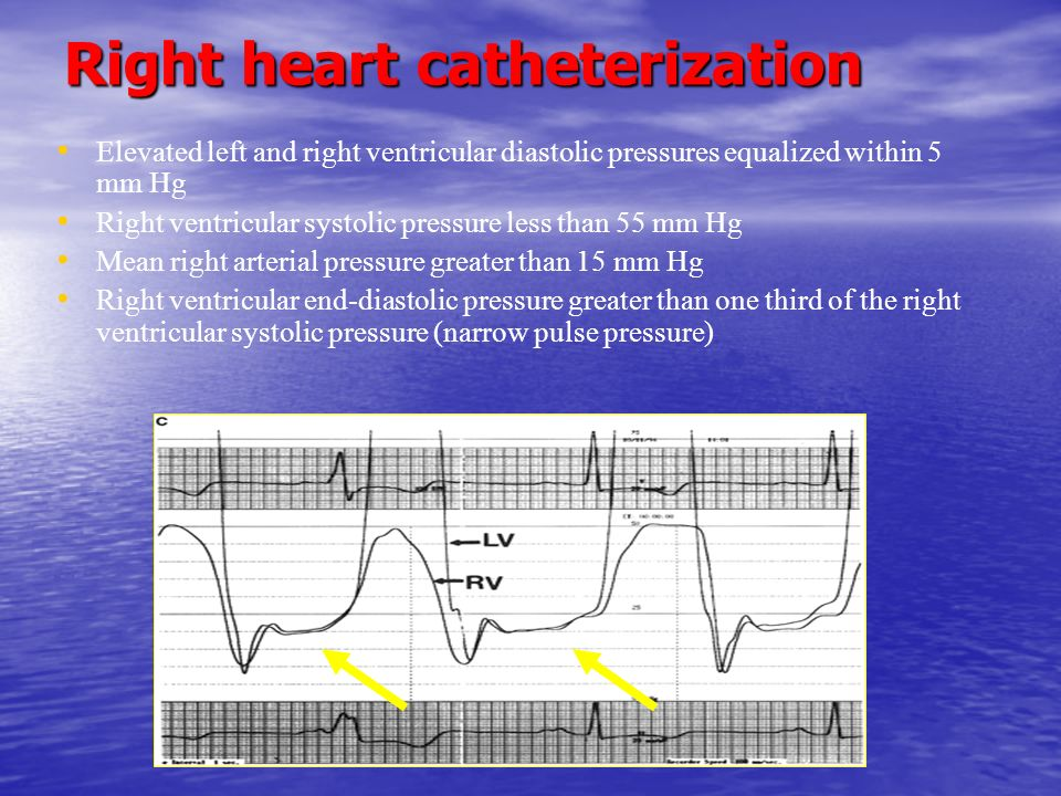 Right heart catheterization Elevated left and right ventricular diastolic pressures equalized within 5 mm Hg Right ventricular systolic pressure less than 55 mm Hg Mean right arterial pressure greater than 15 mm Hg Right ventricular end-diastolic pressure greater than one third of the right ventricular systolic pressure (narrow pulse pressure)