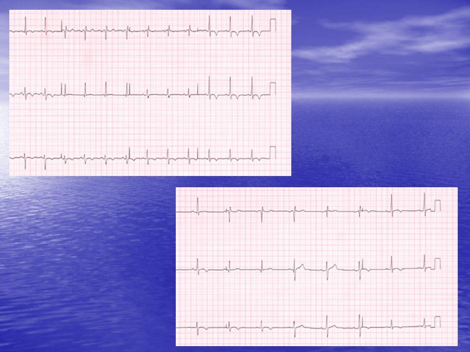 Normal inspirasyon esnasında sistemik arteryel basınçta 5-8 mmHg'lık düşüş normaldir.