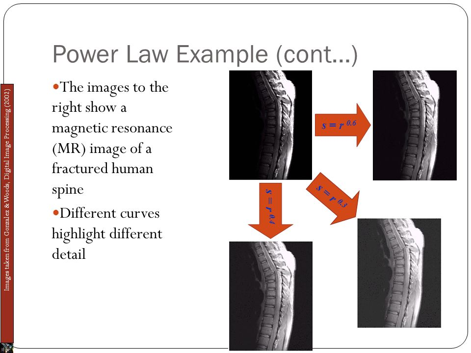 Power Law Example (cont…) The images to the right show a magnetic resonance (MR) image of a fractured human spine Different curves highlight different detail s = r 0.6 s = r 0.4 s = r 0.3 Images taken from Gonzalez & Woods, Digital Image Processing (2002)